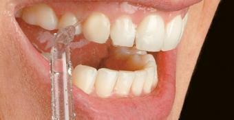 Verwijder meer tandplak
